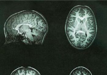 Study shows molecule may stop pediatric brain tumor