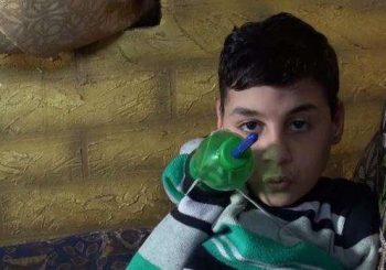 Soda bottle arm brings a little boy 'back to life'