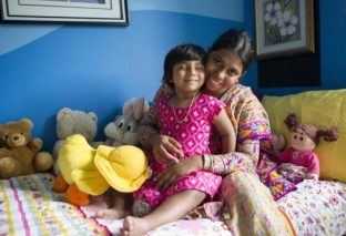 Surgery success for girl with three legs