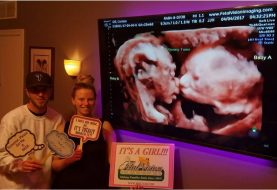Ultrasound captures kiss between twin fetuses