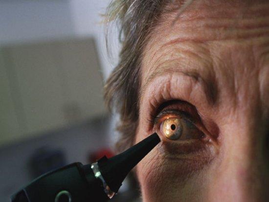 Levitra Eye Problems