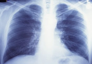 Nearly 4 million people die from asthma each year, says COPD