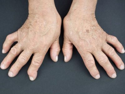 Certain jobs linked to raised risk of rheumatoid arthritis
