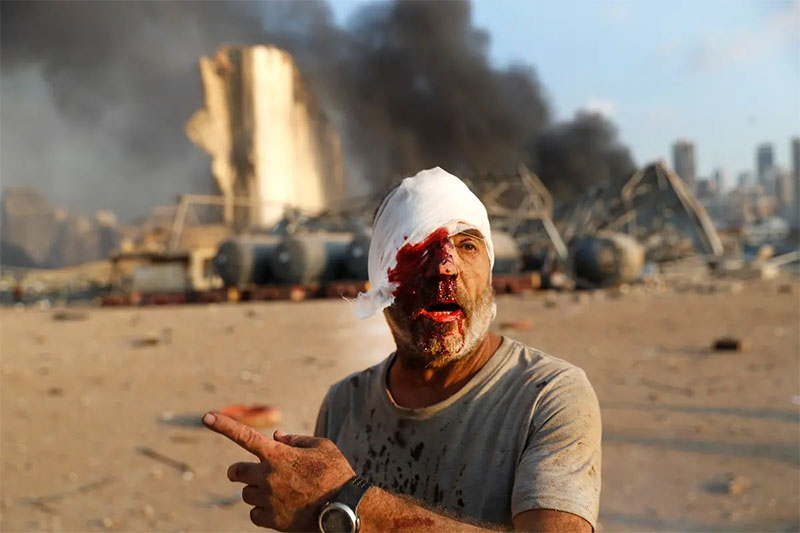 An injured man walks at the explosion scene that hit the seaport, in Beirut Lebanon